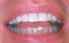 http://moon-smile.com/images/Upper_teeth-_veneered.jpg