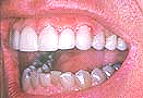 http://moon-smile.com/images/upper_veneers.jpg